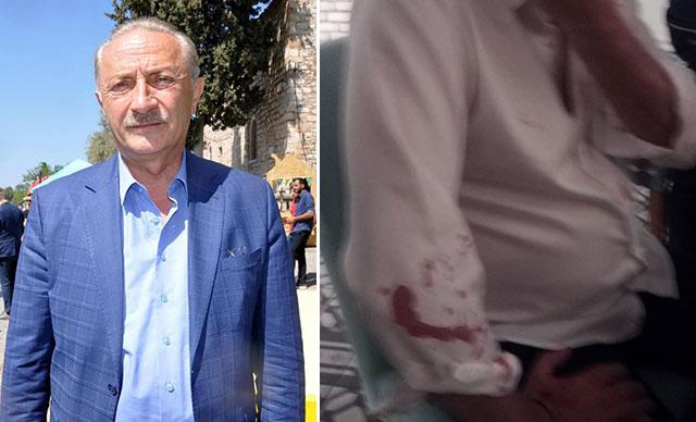 Didim Belediye Başkanı Atabay ve avukatına beyzbol sopalı saldırı