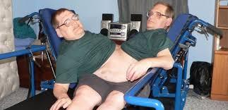 Dünya'nın en yaşlı yapışık ikizleri 68 yaşında hayata veda etti