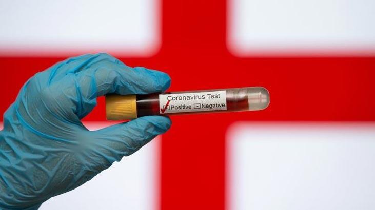 İngiltere'de son 24 saatte koronavirüsten 173 ölüm